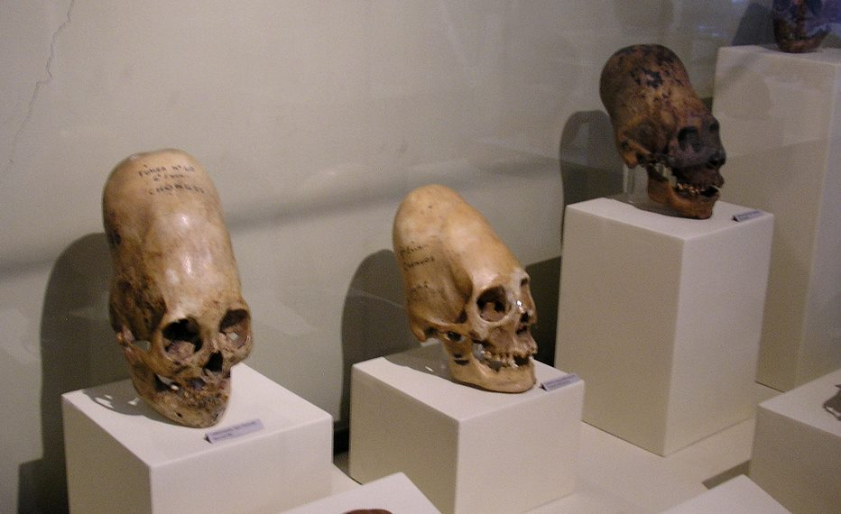 Are the Paracas elongated skulls alien?